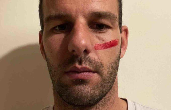 calciatori segno rosso faccia